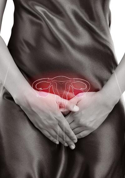Female Health - Endometriosis